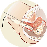 IVF in-vitro-Fertilisation