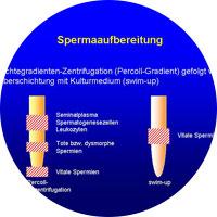 Spermaaufbereitung