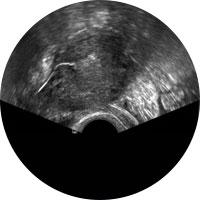 Untersuchung der Eileileiter durch Ultraschall