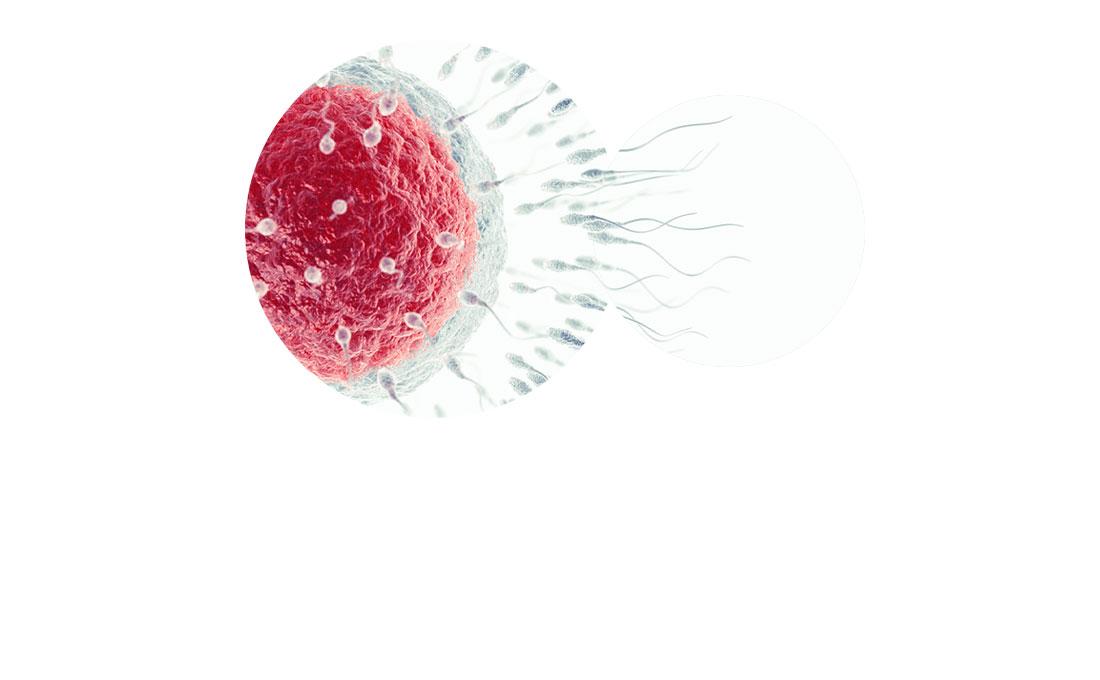IVF ICSI